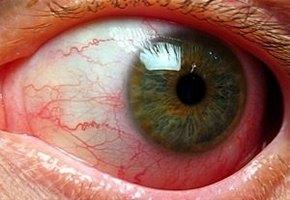 ангиопатия сетчатки глаза лечение