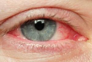 тромбоз сетчатки глаз