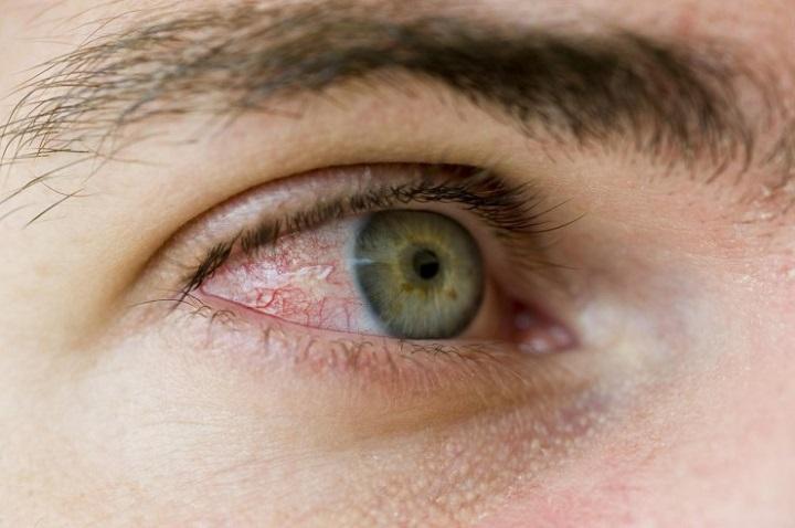 красные глаза при демодекозе
