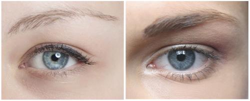 признаки заболеваний по глазам
