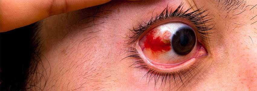травма глаза причины