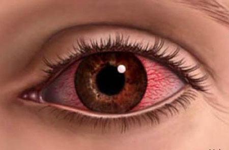 воспаленные глаза