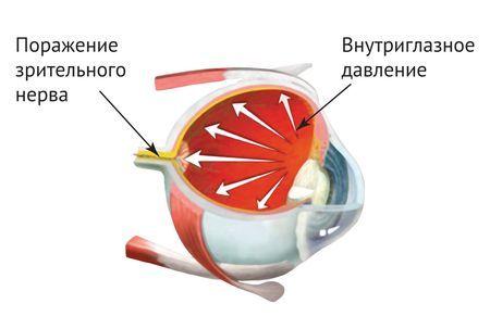 картинка глазного давления