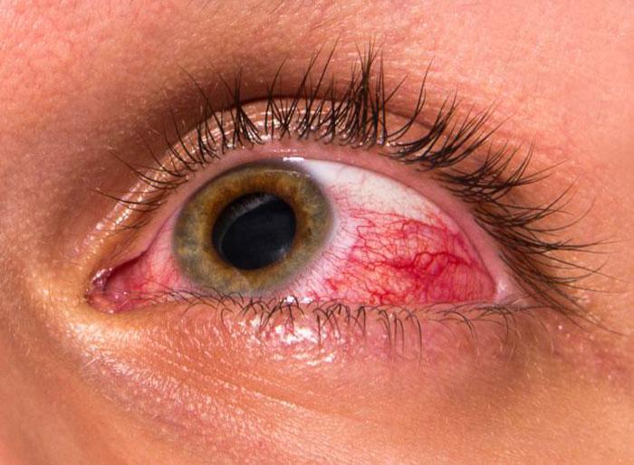 красные глаза от давления