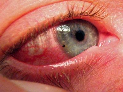 симптомы воспаленных глаз