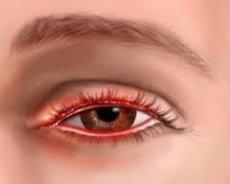 глазной демодекоз
