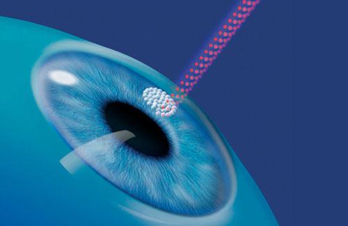 Лазерная-коррекция-зрения-плюсы-и-минусы
