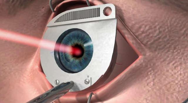 Лазер-и-луч-в-глаз