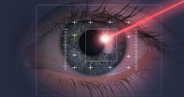лазер для стекловидного тела